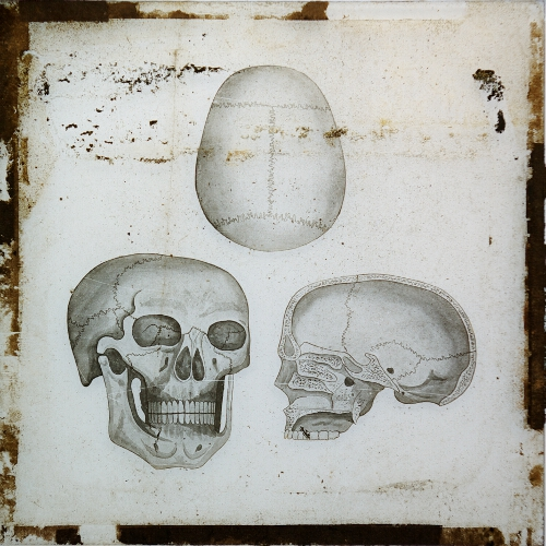 Skull (front, top, and section)