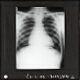 [X-Ray photograph of human chest]